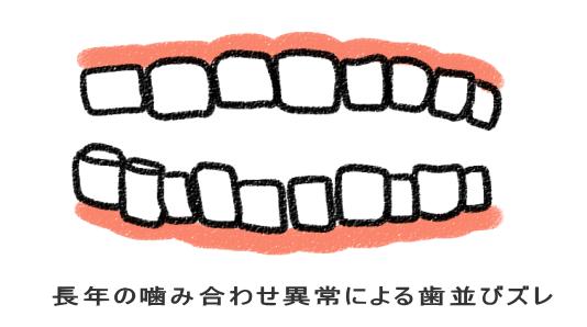 長年の噛み合わせ異常による歯並びズレ