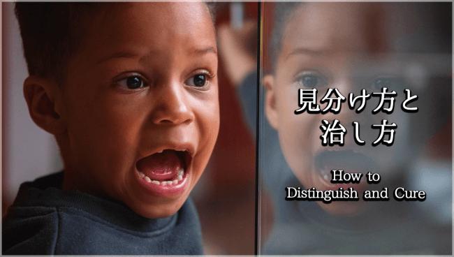 口呼吸の見分け方と治し方